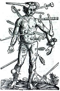 Illustration from a 16th century book of Military field surgery